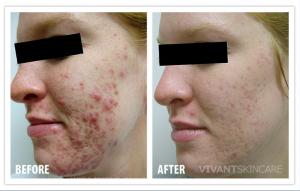 acne vivant bna