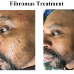 Fibromas Before After