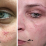 Telangiectasia (broken capillary) Before and After
