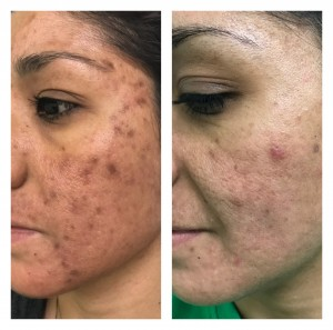 ACNE TREATMENT BEFORE & AFTER